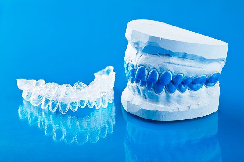 Aparelho De Clareamento Dental Ideal Odonto