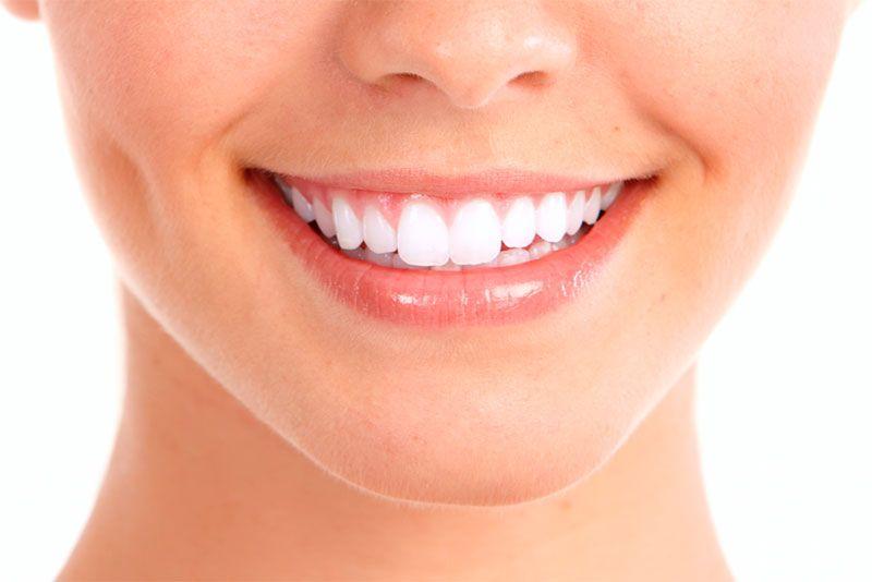 Bisnaga Clareamento Dental Ideal Odonto
