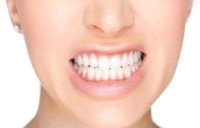 Como Branquear Os Dentes Em 1 Dia Ideal Odonto