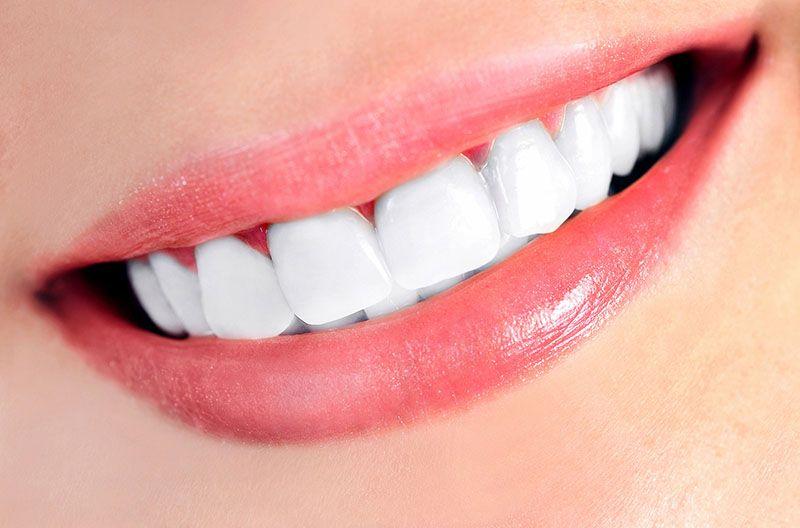 Como Branquear Os Dentes Em Casa Ideal Odonto