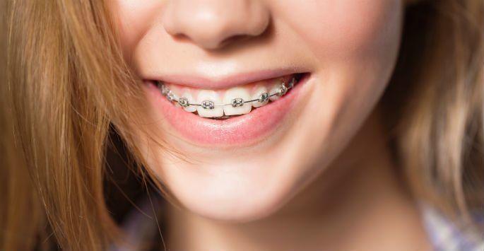 Como Tirar Manchas Do Dente Por Causa Do Aparelho Ideal Odonto