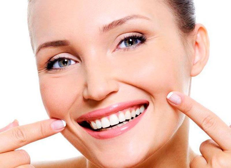 Dentes Clareados Ideal Odonto