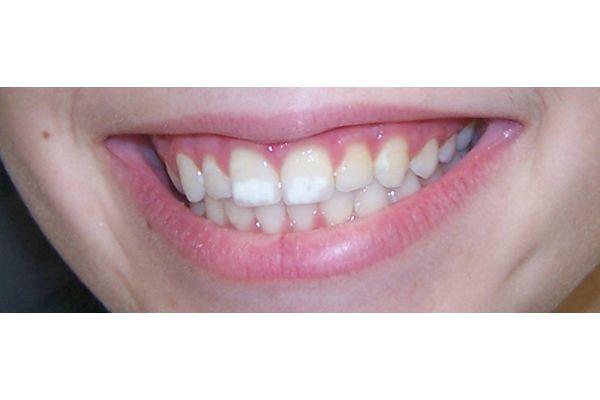 Mancha Branca Dente Permanente Ideal Odonto