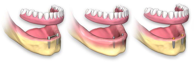 Quanto Custa Um Implante De Dente Ideal Odonto