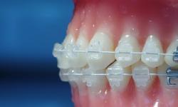 aparelho de dente de porcelana