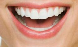 cárie no dente da frente