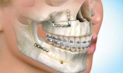 cirurgia ortognática quanto custa