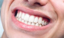 como tirar tártaro dos dentes