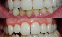 Como tirar tártaro dos dentes com bicarbonato
