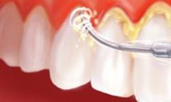 Dicas de como tratar a periodontite