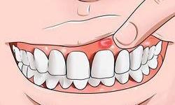 dente inflamado gengiva inchada