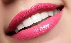 Dentes clareados
