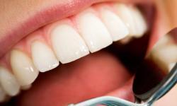 Desinchar dente