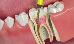 dor dente canal remédio