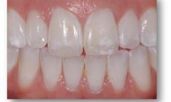mancha branca dente permanente