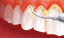 Remover tártaro dos dentes