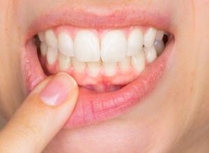abscesso dentário antibiótico