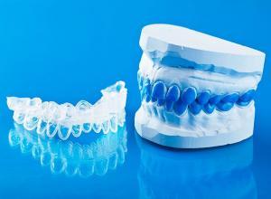 aparelho de clareamento dental