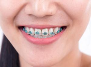 Aparelho de dente fixo