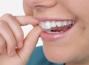 Indicações e benefícios do aparelho de dente móvel