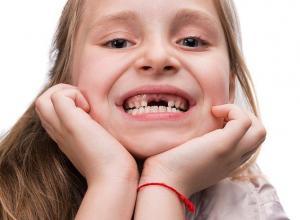 arrancar dente do siso