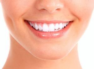 bisnaga clareamento dental