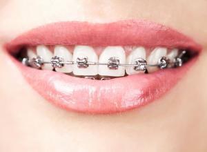 colocar aparelho nos dentes