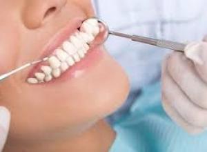 Como acabar com tártaro nos dentes
