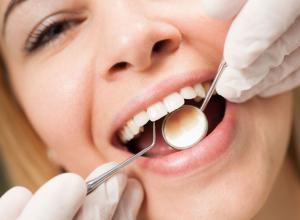 como eliminar tártaro dos dentes