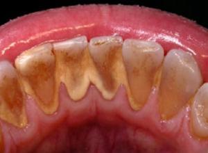 como eliminar tártaro nos dentes