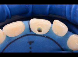 Como tirar cárie no dente da frente
