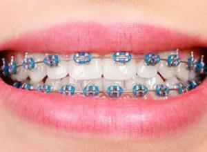 como tirar manchas do dente por causa do aparelho