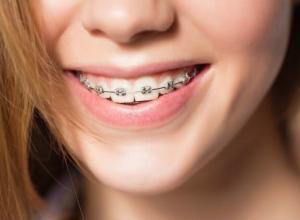 Saiba como tirar manchas do dente por causa do aparelho