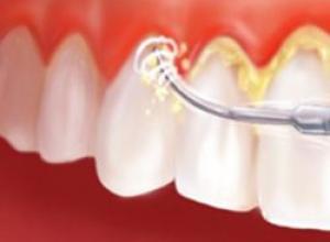 como tratar periodontite