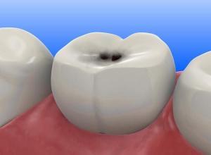 dente com buraco