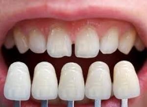 dente de porcelana valor