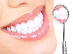 Tudo sobre dente de porcelana valor