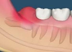 dente do siso deitado