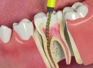 dente sensível apos canal
