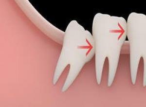 dente siso podre