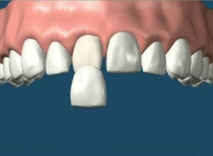 dentes com facetas de porcelana
