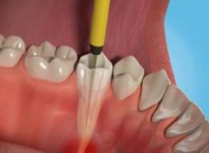 dor de dente canal sintomas