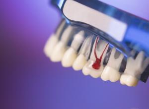 dor dente canal inflamado