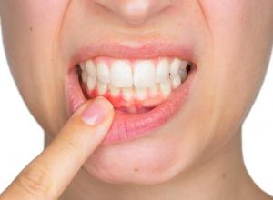 dor dente siso inflamado