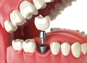 Implante dentário protocolo