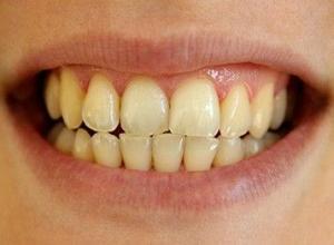 placa dentista