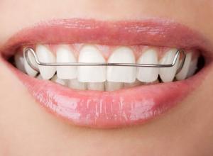 plano odontológico que cobre aparelho