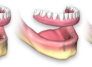 Saiba quanto custa um implante de dente