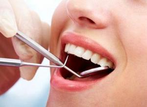 Remover tártaro dos dentes com agua oxigenada